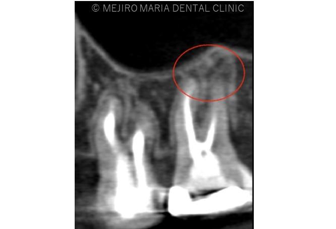 目白マリア歯科【症例】再根管治療| CT、マイクロスコープを使った精密根管治療_治療詳細_レントゲン画像1