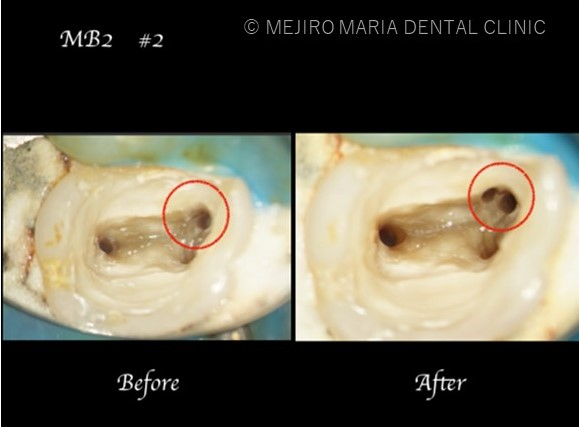 目白マリア歯科【症例】再根管治療| CT、マイクロスコープを使った精密根管治療_治療詳細_患部の比較写真