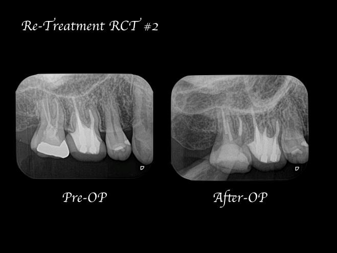 目白マリア歯科【症例】再根管治療| CT、マイクロスコープを使った精密根管治療_術前術後のレントゲン比較画像