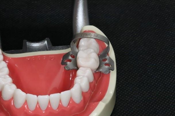 目白マリア歯科のラバーダムを装着するためのクランプを歯の模型に装着した画像