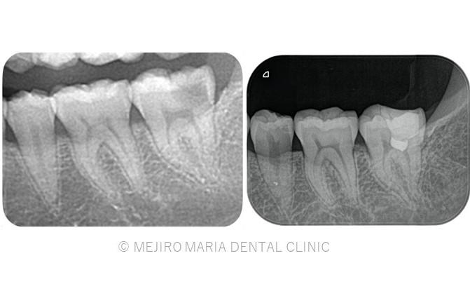 目白マリア歯科【症例】生活歯髄切断法を用いて歯髄保存した症例−歯の神経を保存できる虫歯処置− _メイン_治療前後のレントゲン画像