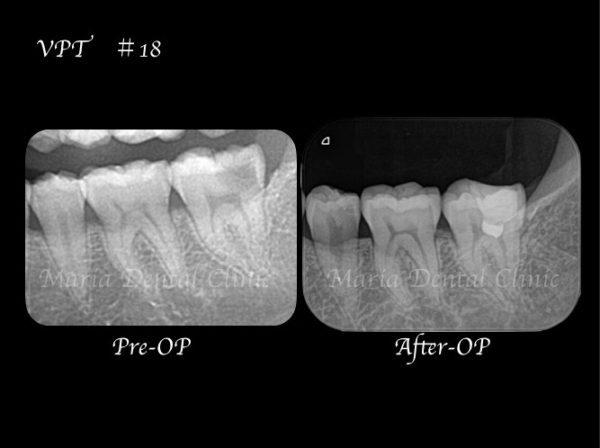 目白マリア歯科【症例】生活歯髄切断法を用いて歯髄保存した症例−歯の神経を保存できる虫歯処置− _治療詳細_術前術後レントゲン画像