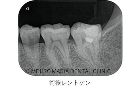 目白マリア歯科【症例】生活歯髄切断法を用いて歯髄保存した症例−歯の神経を保存できる虫歯処置− _治療詳細_術後レントゲン画像
