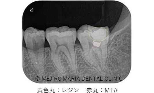 目白マリア歯科【症例】生活歯髄切断法を用いて歯髄保存した症例−歯の神経を保存できる虫歯処置− _治療詳細_術後レントゲン画像_レジンとMTAがわかる状態