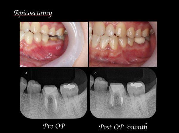 目白マリア歯科【症例】歯根端切除術により抜歯を覚悟していた歯の保存に成功_術前術後の比較レントゲン画像