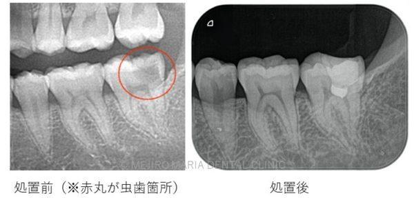 目白マリア歯科の生活歯髄保存法