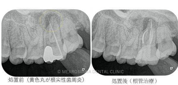 目白マリア歯科 根尖性歯周炎症例写真