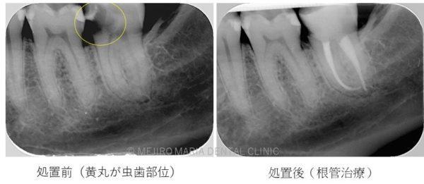 目白マリア歯科 根管治療