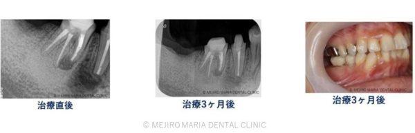 目白マリア歯科 歯根端切除術の症例画像