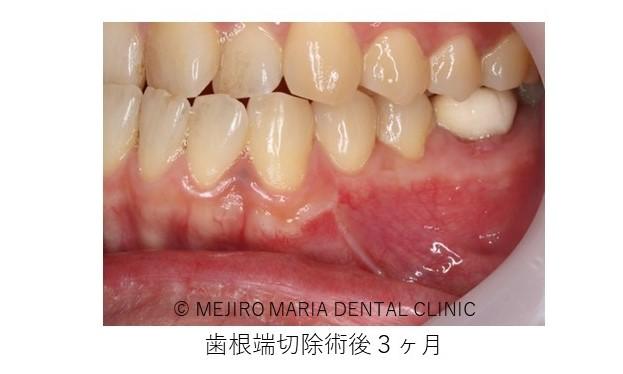 目白マリア歯科 歯根端切除術症例歯根端切除術後3か月画像