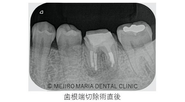 目白マリア歯科 歯根端切除術症例歯根端切除術直後レントゲン画像