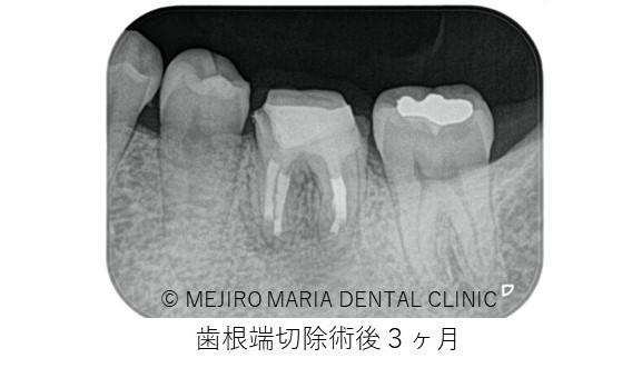 目白マリア歯科 歯根端切除術症例歯根端切除術3か月後レントゲン画像