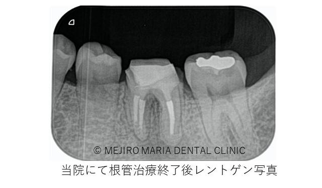 目白マリア歯科 歯根端切除術症例治療中レントゲン画像