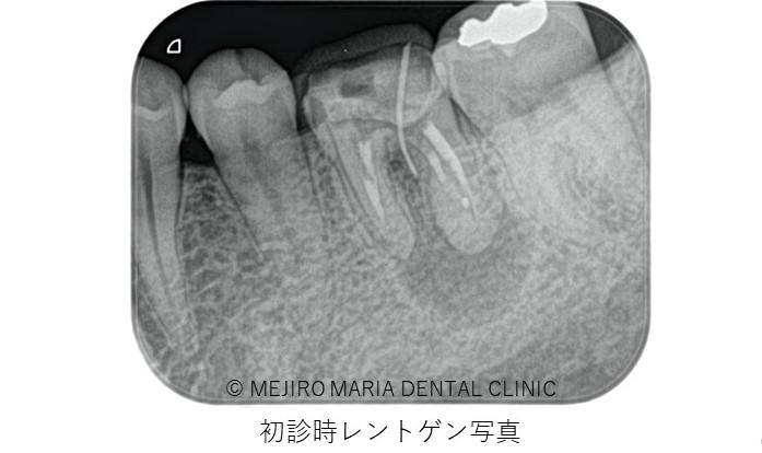 目白マリア歯科 歯根端切除術症例治療前レントゲン画像