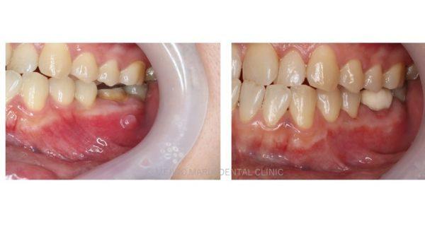 目白マリア歯科 歯根端切除術症例画像