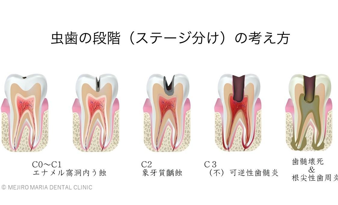 目白マリア歯科 虫歯のステージの模式図