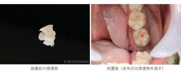 目白マリア歯科_コラム_虫歯治療のステージと治療法(院長宮澤)_セラミック 修復