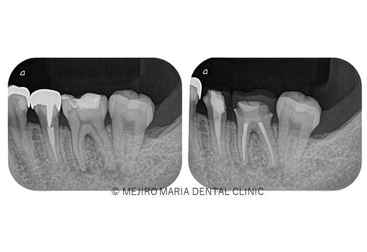目白マリア歯科【症例】初回根管治療(歯髄壊死)|患者様利益を考えた精密根管治療_メイン_治療前後のレントゲン画像