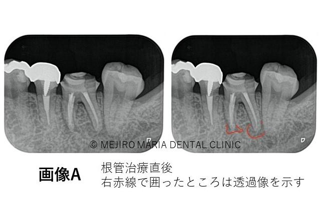 目白マリア歯科【症例】初回根管治療(歯髄壊死)|患者様利益を考えた精密根管治療_治療後_根管治療直後のレントゲン画像