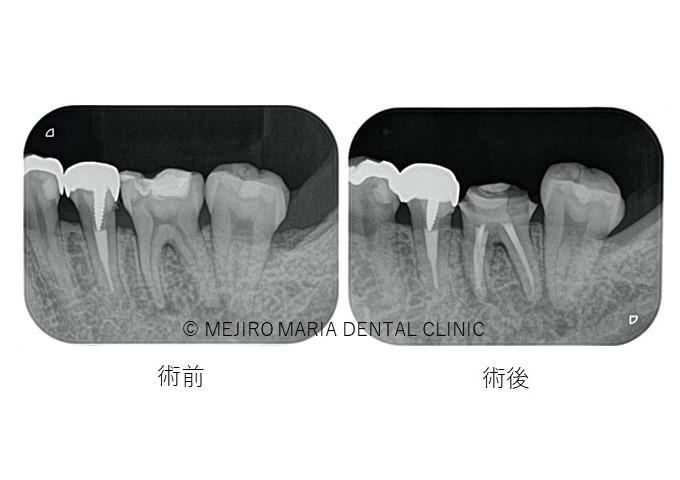 目白マリア歯科【症例】初回根管治療(歯髄壊死)|患者様利益を考えた精密根管治療_治療後_術前術後のレントゲン画像
