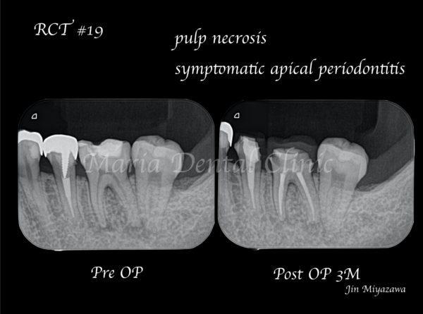 目白マリア歯科【症例】初回根管治療(歯髄壊死)|患者様利益を考えた精密根管治療_治療後_術前術後の比較レントゲン画像