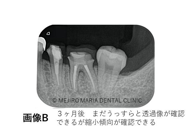 目白マリア歯科精密根管治療症例抜髄0422治療後B