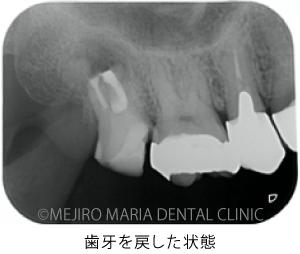 目白マリア歯科_意図的再植術0625治療詳細3