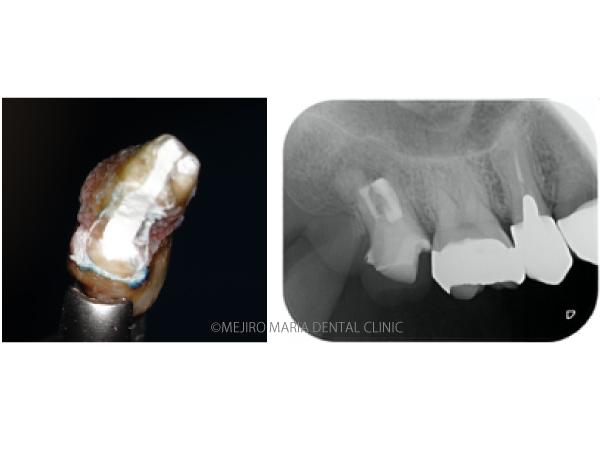 目白マリア歯科【症例】意図的再植術|歯根破折歯を保存したチャレンジケース_メイン_歯根破折歯とレントゲン写真