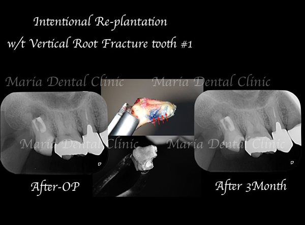 目白マリア歯科【症例】意図的再植術|歯根破折歯を保存したチャレンジケース_レントゲン写真術前術後