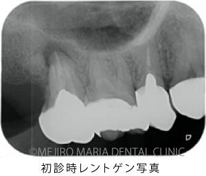 目白マリア歯科【症例】意図的再植術|歯根破折歯を保存したチャレンジケース_治療前_初診時レントゲン写真