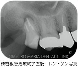 目白マリア歯科【症例】意図的再植術|歯根破折歯を保存したチャレンジケース_治療前_精密根管治療終了直後のレントゲン写真