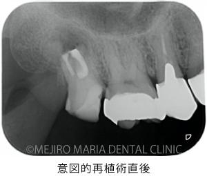 目白マリア歯科【症例】意図的再植術|歯根破折歯を保存したチャレンジケース_治療後_意図的再植術直後のレントゲン写真