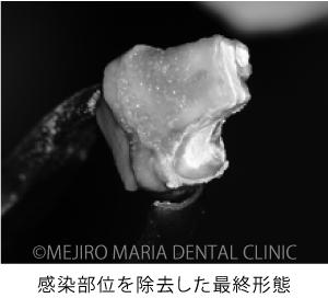 目白マリア歯科【症例】意図的再植術|歯根破折歯を保存したチャレンジケース_治療詳細_感染部位を除去した最終形態の写真