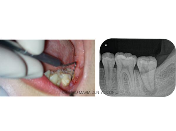 目白マリア歯科【症例】穿孔修復・パーフォレーションリペア|他院での偶発トラブルに対応したケース_メイン_治療中とレントゲンの写真