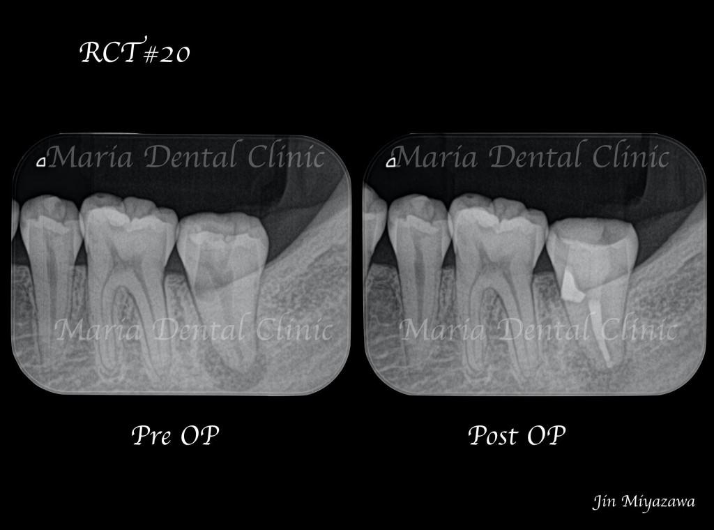 目白マリア歯科【症例】穿孔修復・パーフォレーションリペア|他院での偶発トラブルに対応したケース_レントゲン写真術前術後