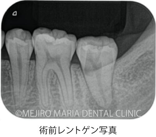 目白マリア歯科【症例】穿孔修復・パーフォレーションリペア|他院での偶発トラブルに対応したケース_治療前_術前レントゲン写真