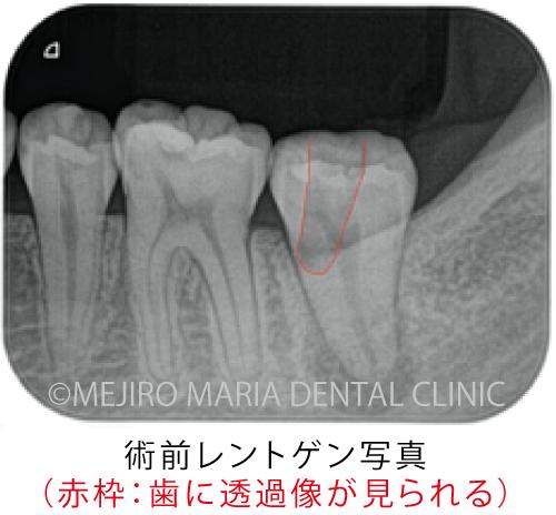 目白マリア歯科【症例】穿孔修復・パーフォレーションリペア|他院での偶発トラブルに対応したケース_治療前_術前レントゲン写真_透過像が見える状態