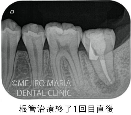 目白マリア歯科【症例】穿孔修復・パーフォレーションリペア|他院での偶発トラブルに対応したケース_治療後_根管治療終了1回目直後