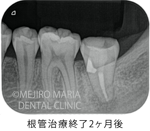 目白マリア歯科【症例】穿孔修復・パーフォレーションリペア|他院での偶発トラブルに対応したケース_治療後_根管治療終了2ヶ月後