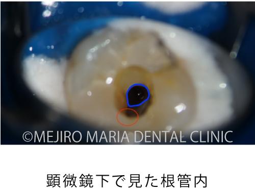 目白マリア歯科【症例】穿孔修復・パーフォレーションリペア|他院での偶発トラブルに対応したケース_治療詳細_顕微鏡下で見た根管内の様子_全体