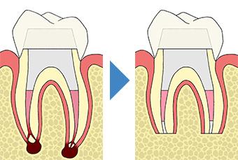 生活歯髄切断法(歯髄保存療法)