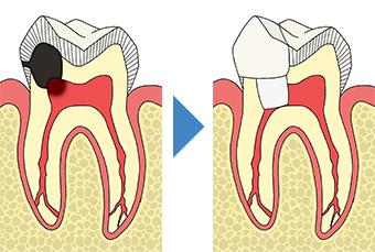生活歯髄切断法(歯髄保存療法) 神経を残す治療(回復可能な歯髄炎の場合)