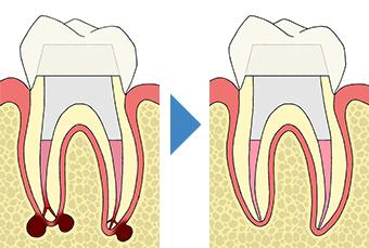 感染根管治療 感染した歯髄や腐敗物、細菌を取り除く治療