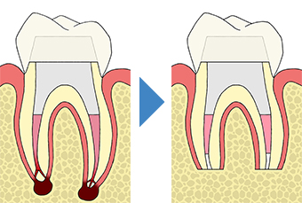 歯根端切除術 根管治療を行っても良くならない場合の外科的歯内療法