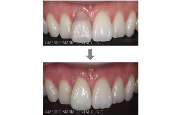 目白マリア歯科【症例】根管治療後のウォーキングブリーチによる審美的回復_メイン_治療前後の比較