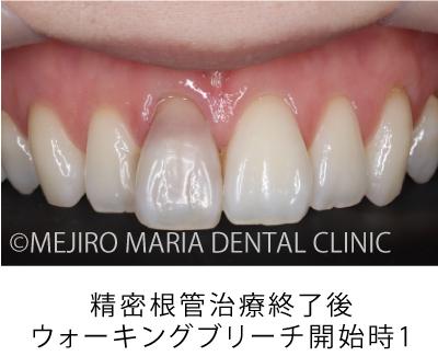 目白マリア歯科【症例】根管治療後のウォーキングブリーチによる審美的回復_治療前_精密根管治療終了後_ウォーキングブリーチ開始時1