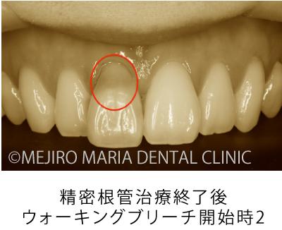 目白マリア歯科【症例】根管治療後のウォーキングブリーチによる審美的回復_治療前_精密根管治療終了後_ウォーキングブリーチ開始時2