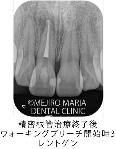 目白マリア歯科【症例】根管治療後のウォーキングブリーチによる審美的回復_治療前_精密根管治療終了後_ウォーキングブリーチ開始時3