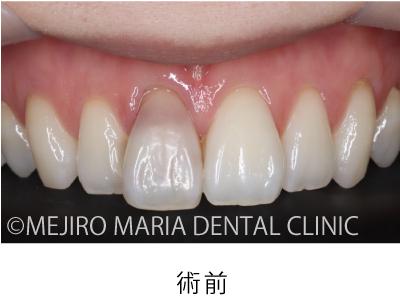 目白マリア歯科【症例】根管治療後のウォーキングブリーチによる審美的回復_治療後_術前の状態