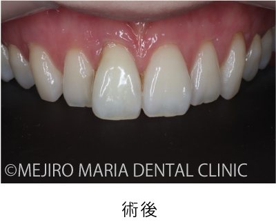 目白マリア歯科【症例】根管治療後のウォーキングブリーチによる審美的回復_治療後_術後の状態